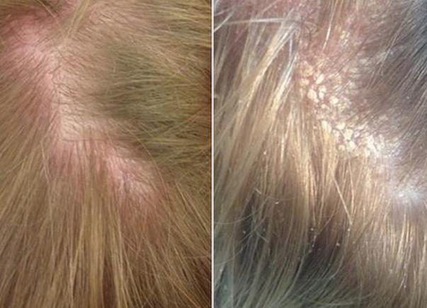 диета при жирной себорее кожи головы