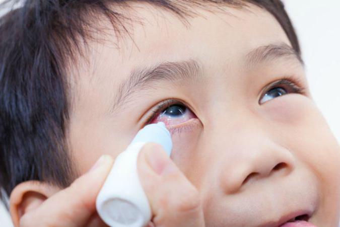 закисают глаза у ребёнка лечение