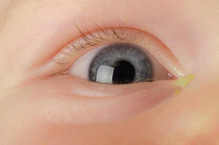 у ребёнка закисают глаза что делать