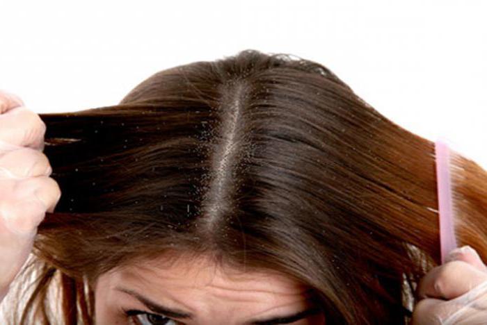 уход за кожей головы при сухости