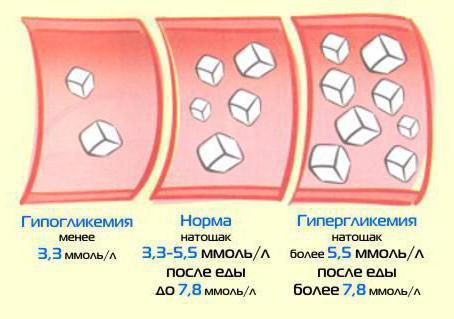 гипергликемия симптомы