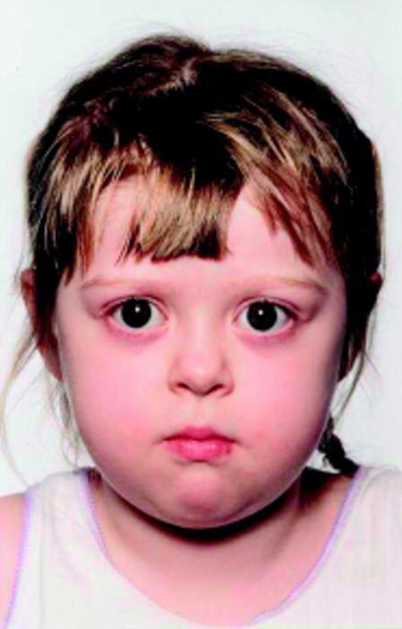 диффузный токсический зоб у детей