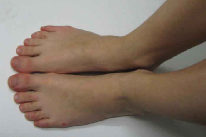 как убрать шишки на пальцах ног