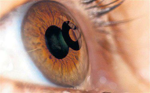катаракта операция отзывы какой хрусталик лучше