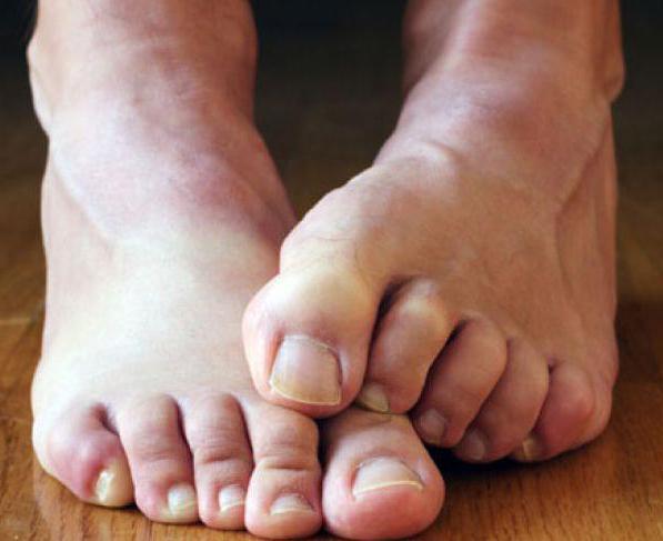 Как лечить ногти на ногах от грибка нашатырным спиртом