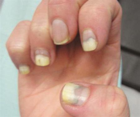 Аллергия на шеллак под ногтями