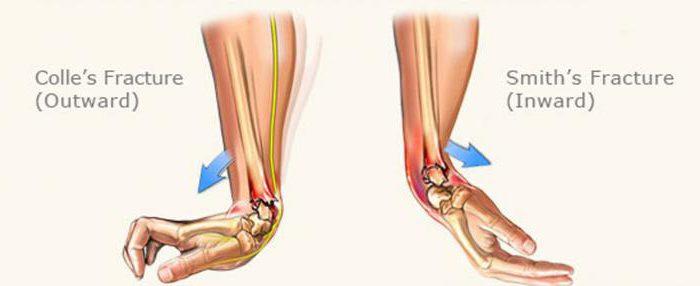 перелом лучевой кости в типичном месте осложнения