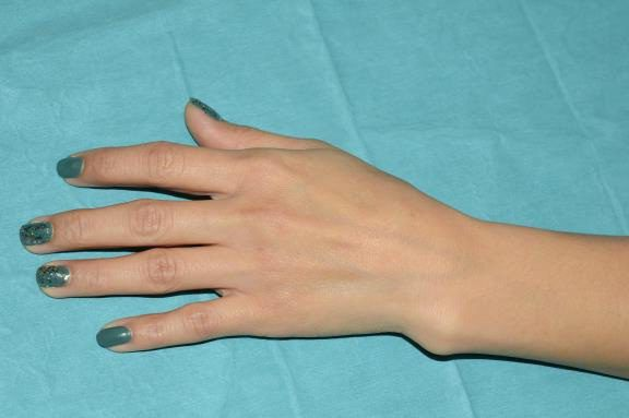закрытый перелом лучевой кости в типичном месте