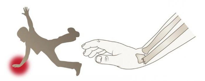 перелом левой лучевой кости в типичном месте