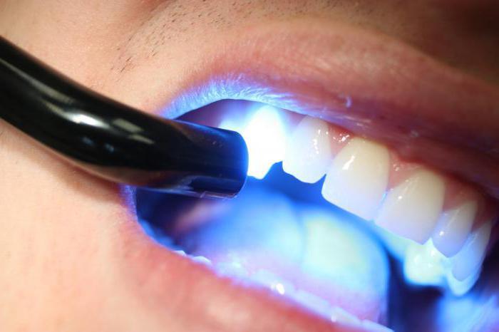 эрозия эмали зубов лечение