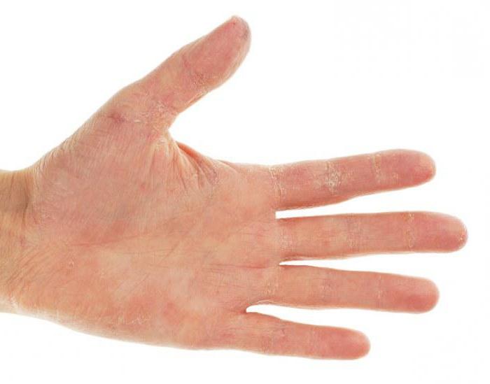chem-snyat-zud-pri-psoriaze-na-rukah