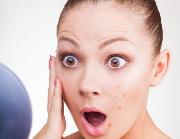 Лечение подростковых прыщей на лице у девочек