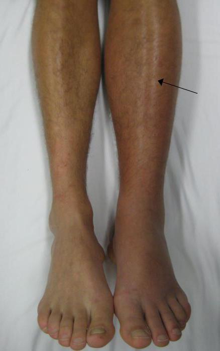 тромбоз вен нижних конечностей симптомы лечение