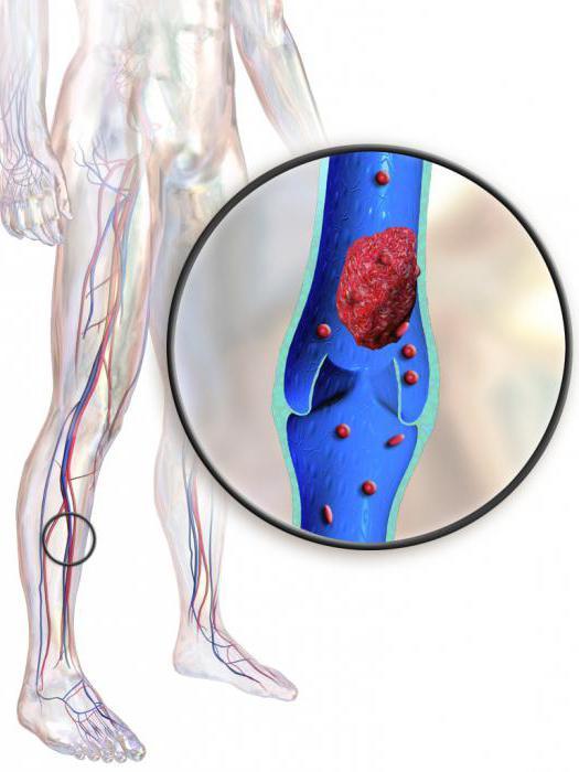 венозный тромбоз