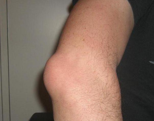 опухоль локтевого сустава симптомы и лечение фото