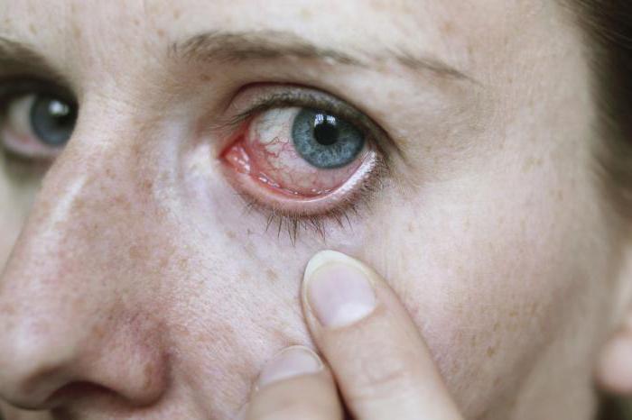 туберкулез глаз симптомы