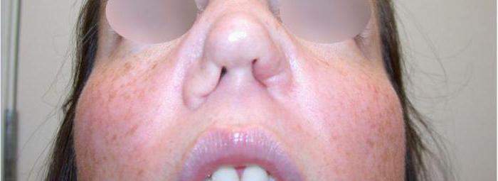 перфорация носовой перегородки последствия