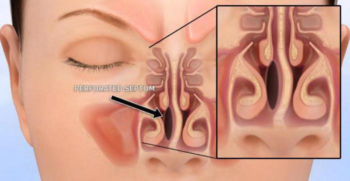 перфорация носовой перегородки