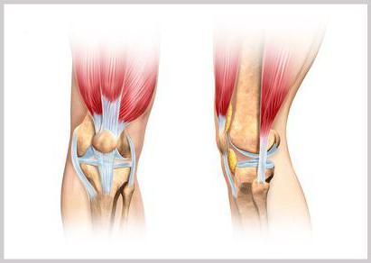 как укрепить связки коленного сустава