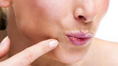 нитевидные бородавки папилломы или акрохорды