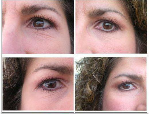 сыворотка вокруг глаз с гиалуроновой кислотой