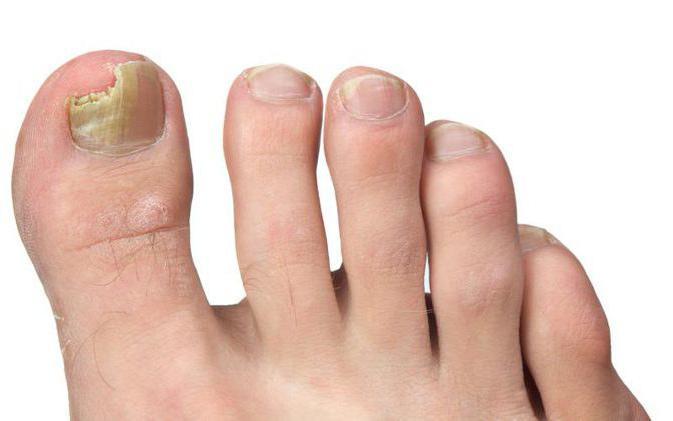 сегодня тексты фото грибка ногтей на ногах линейка
