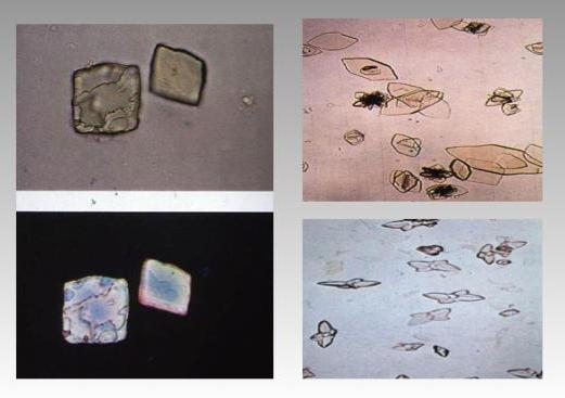 кристаллы кальция в моче