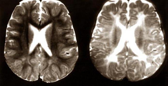 синдром цельвегера