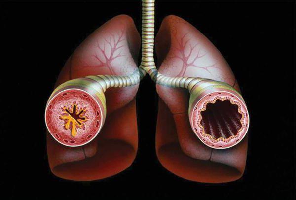 астма причины возникновения