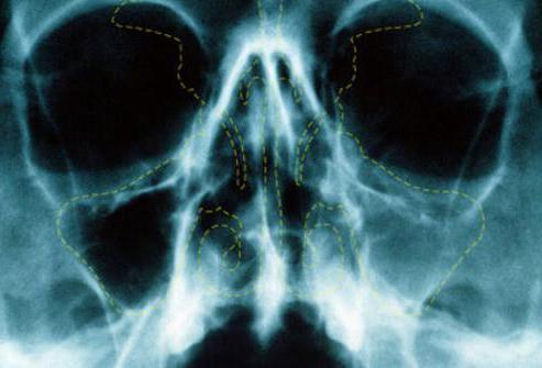 где сделать рентген придаточных пазух носа