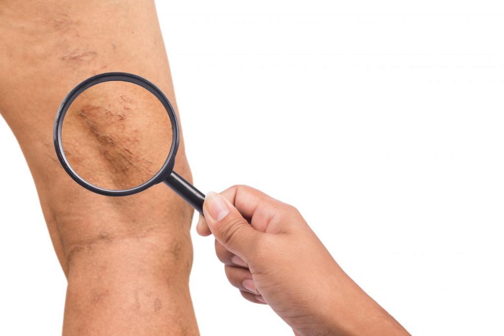 симптомы болезни сосудов ног