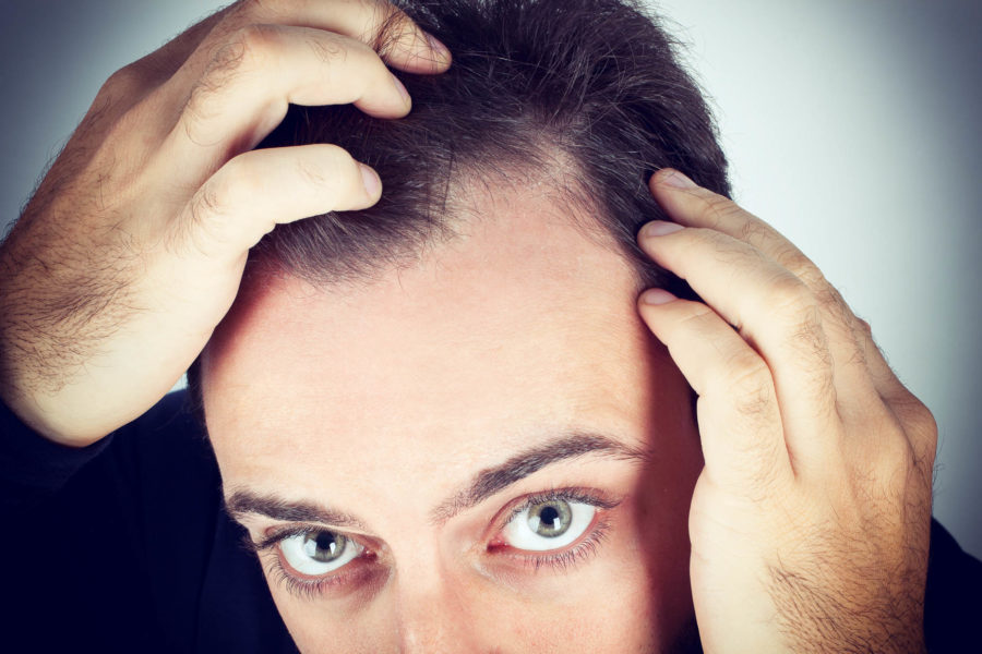 восстановление волос на голове у мужчин
