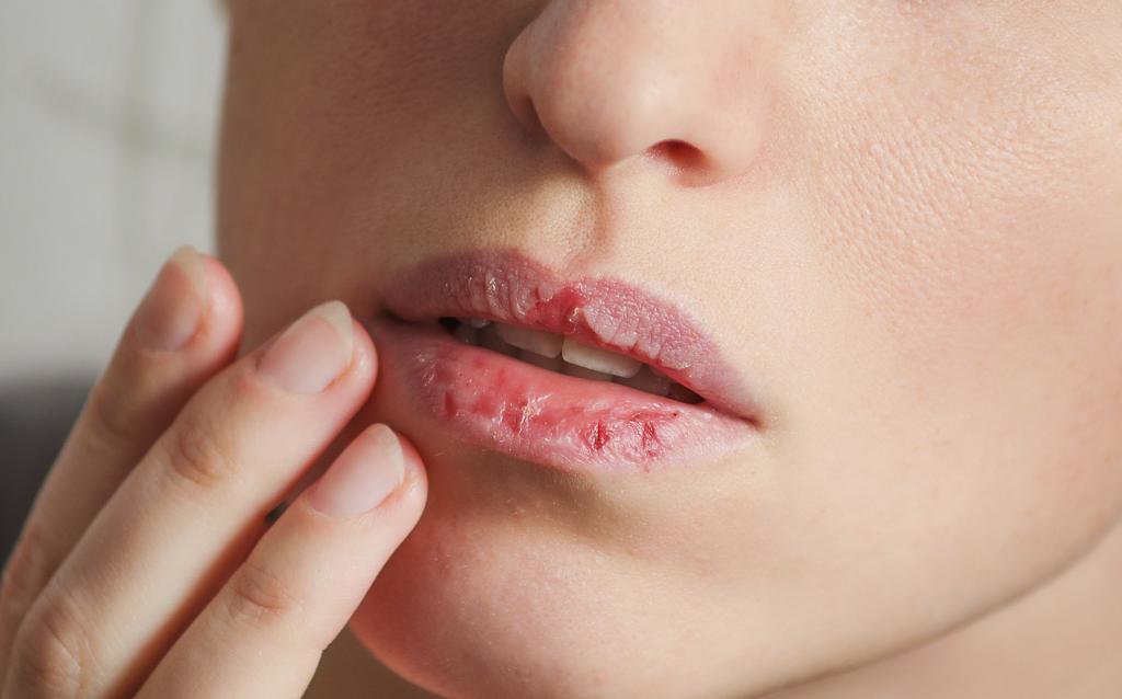 Причины обветренных губ