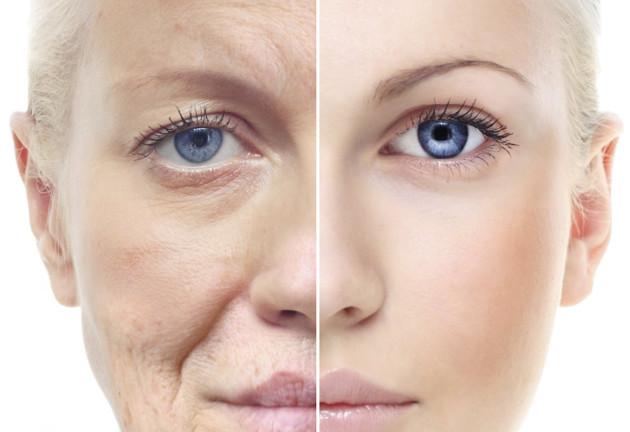Возрастные изменения лица