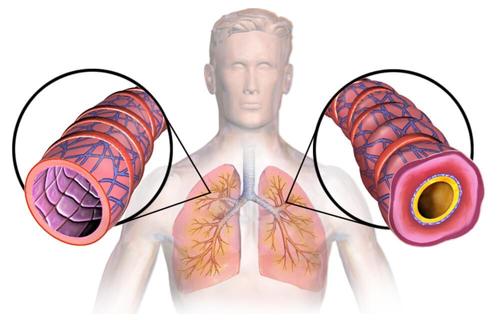 Бронхи здорового человека и астматика.