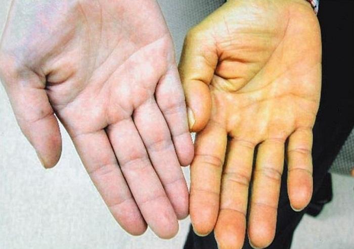 уровень билирубина при гепатите