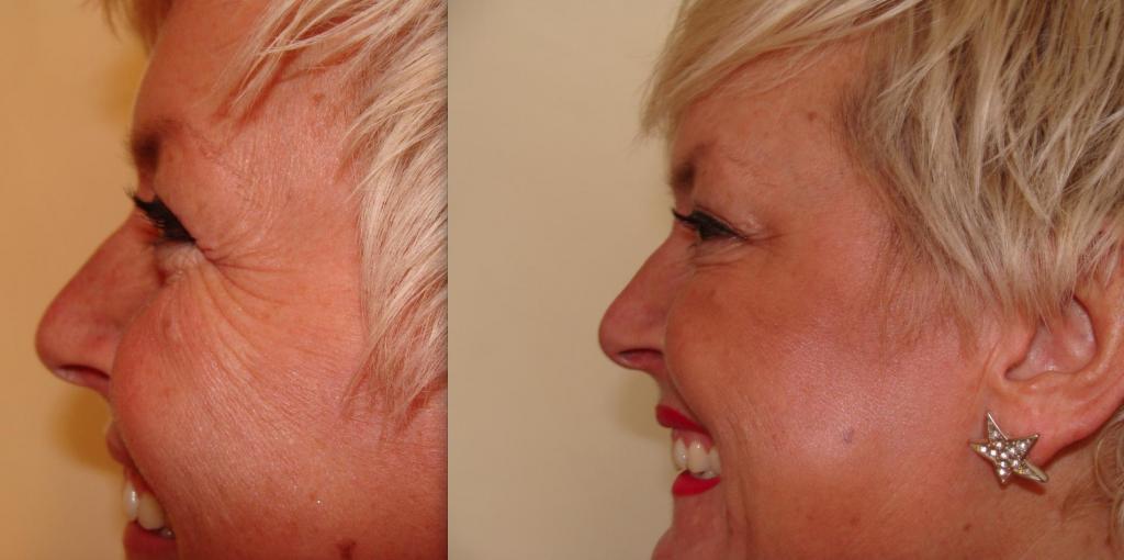 до и после процедуры инъекций ботокса