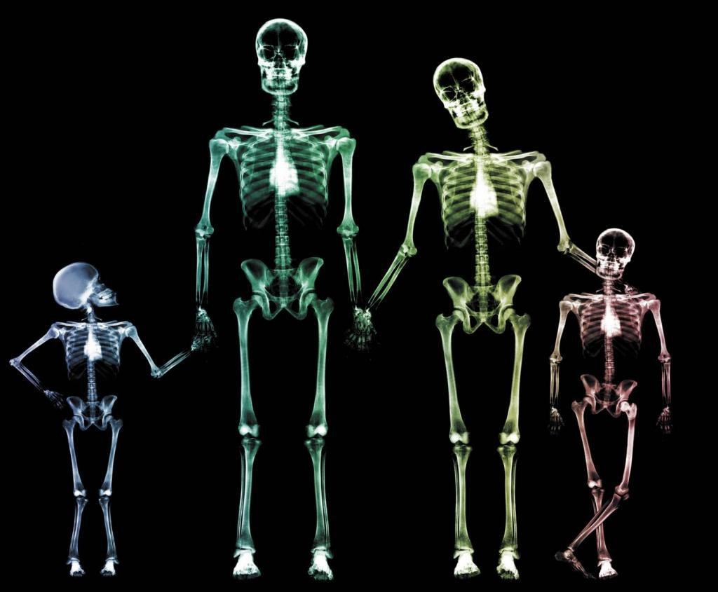 рентген черепа в 2 проекциях