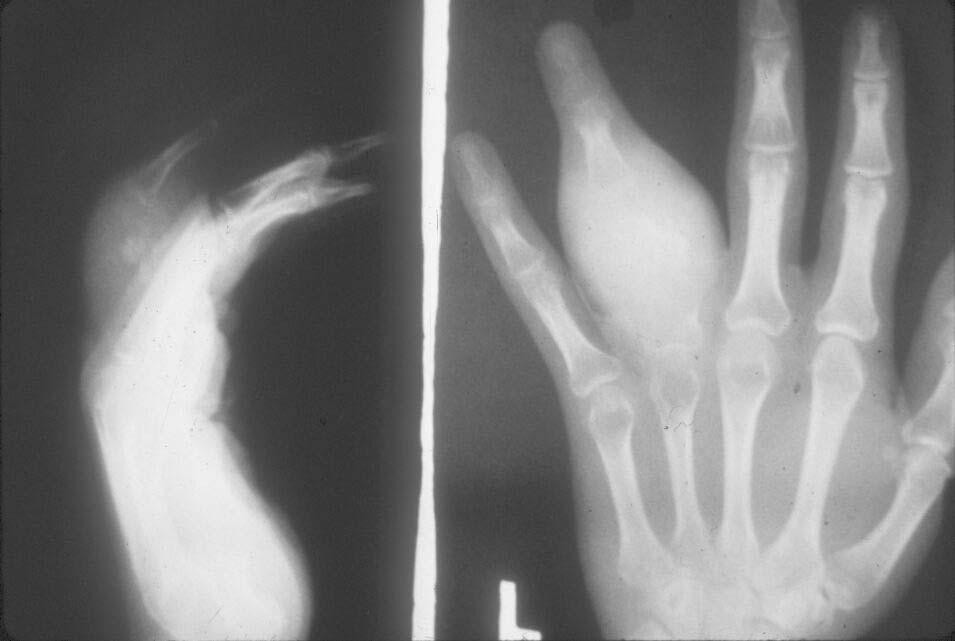 опухоль кости руки