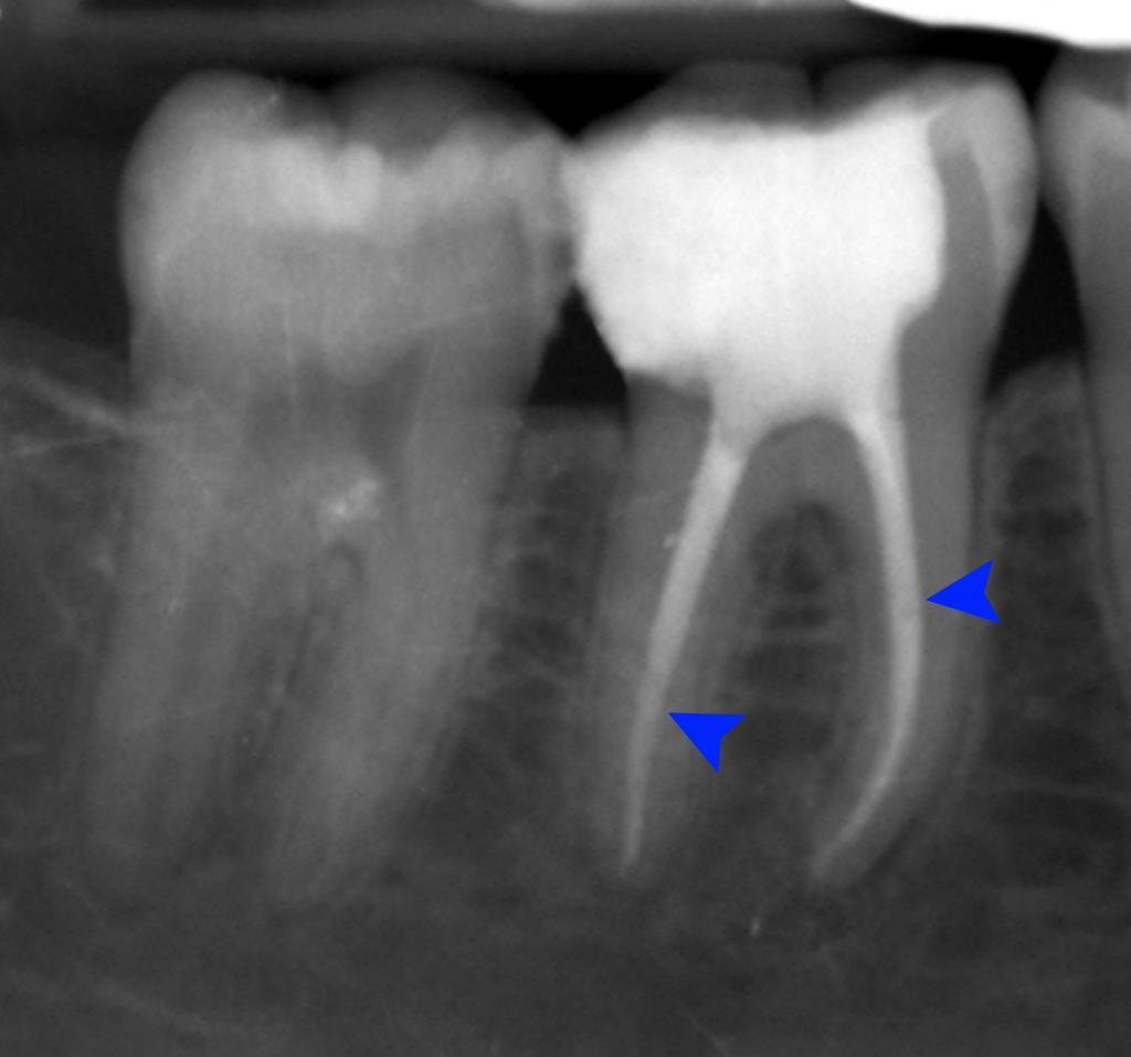 пломбировочный материал для временных зубов