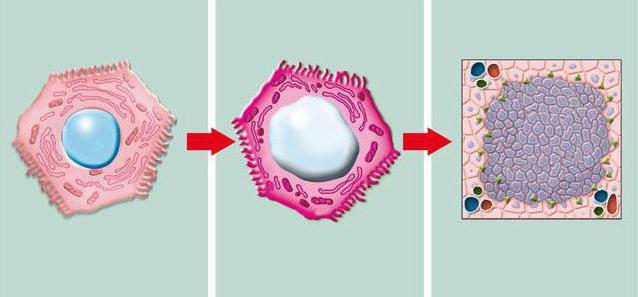 гепатоцеллюлярная карцинома печени лечение