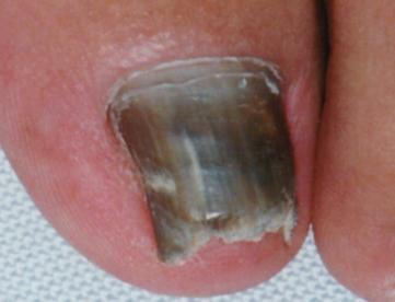 онихомикоз ногтей лечение