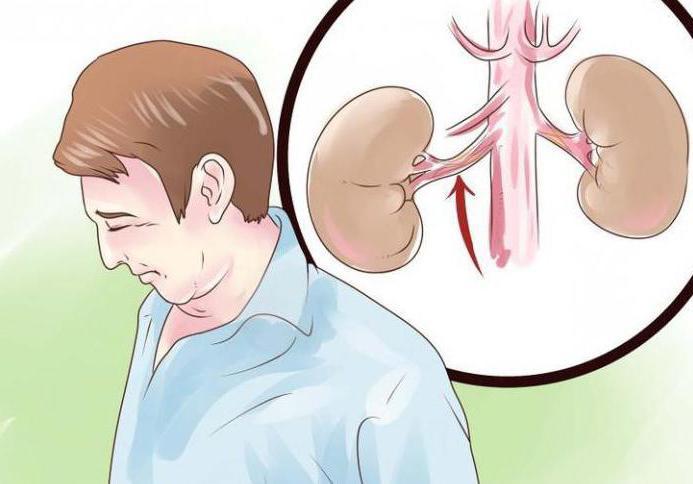стеноз почечной артерии симптомы