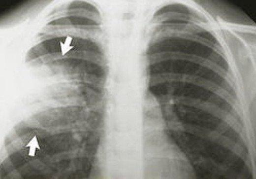 пневмония у детей признаки и лечение