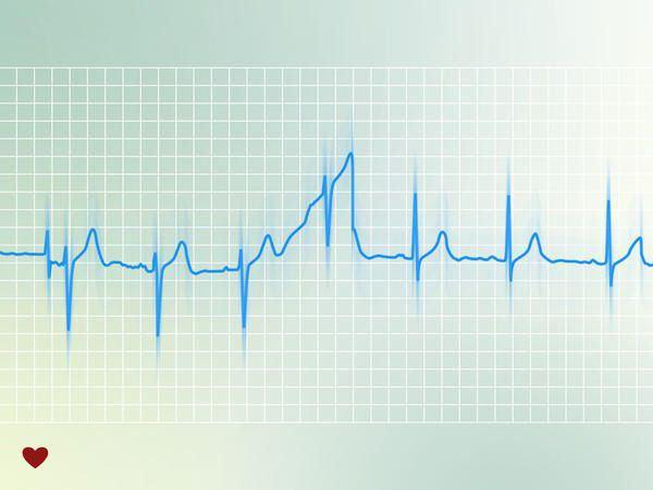 синдром сердца wpw