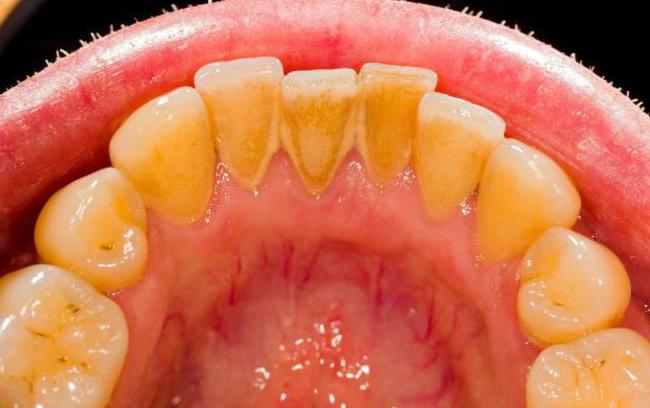 почему появляется зубной камень