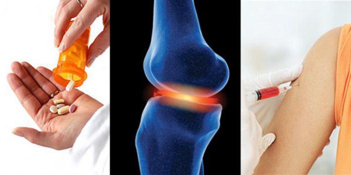 гнойный артрит тазобедренного сустава
