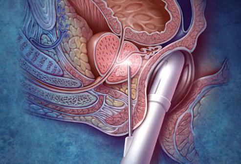 Трансректальная гипертермия при хроническом простатите