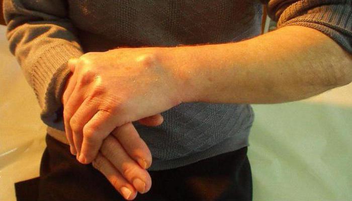 шишка на вене на руке болит