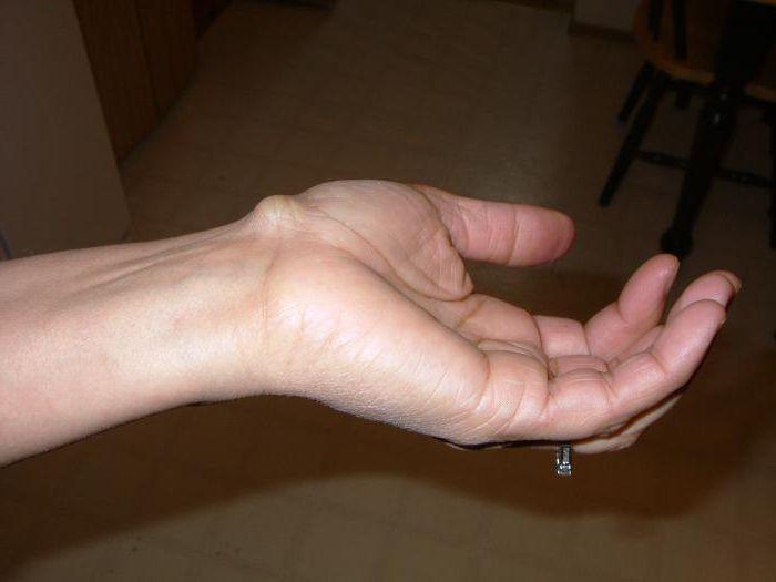 шишки на венах рук причины
